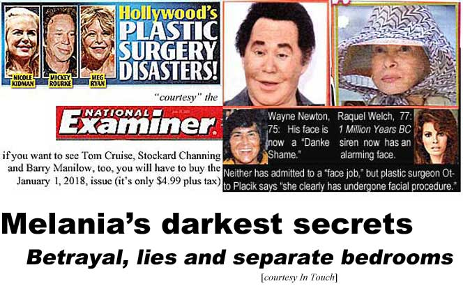 0ab1aed2 Hollywood's plastic surgery disasters! Nicole Kidman, Mickey Rourke, Meg  Ryan; Wayne Newton